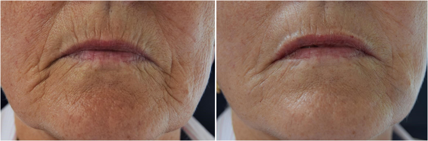 Before and immediately after Filler to treat lips and lines around the lips