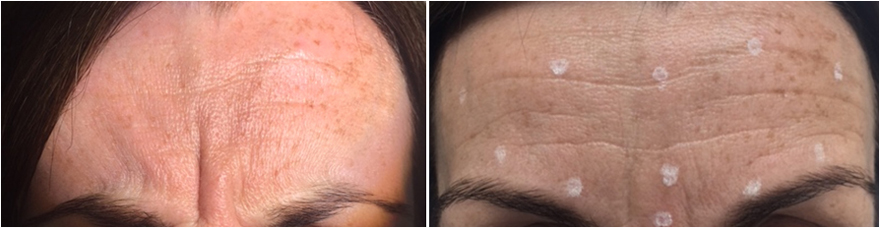 Before Botox and with injection sites marked